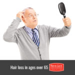 5 Causes of Hair Loss in People Over 65